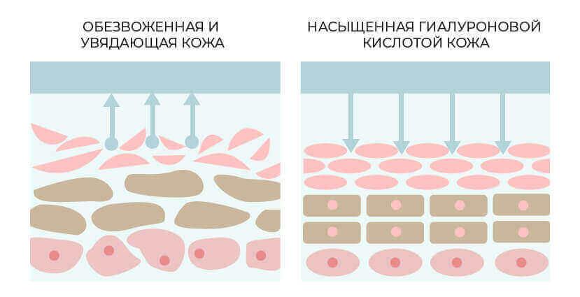 значение гиалуроновой кислоты