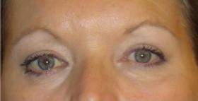 до и после процедуры альтера косметическая процедура