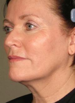 После процедуры smas лифтинга лица